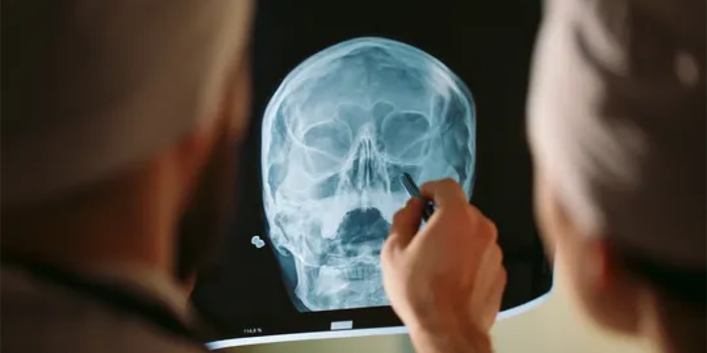 The History of Facial Reconstruction Surgery