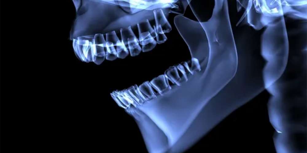 What is 3D Imaging and Why is it Better?