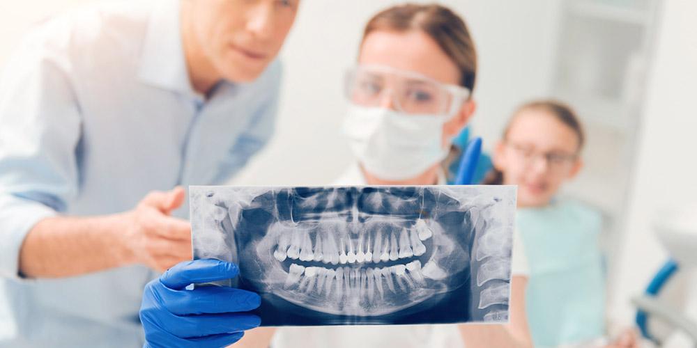 Do I Really Need My Wisdom Teeth Removed?